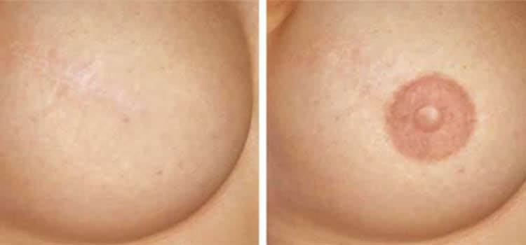 Areola-Restoration in Mission Viejo