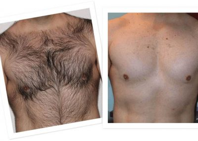 electrolysis-for-men-orange-county