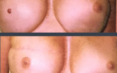 Areola Restoration following Breast Reconstruction surgery