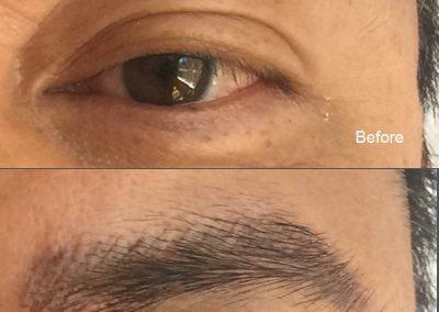 eyebrow-b-a